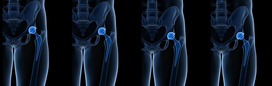Dispositifs médicaux, prothèses : marquage