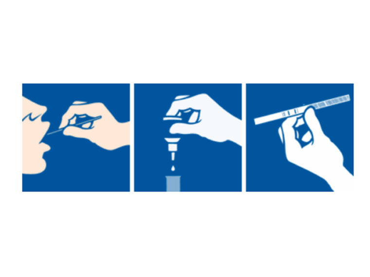 Angine : encore trop de prescriptions d'antibiotiques alors que les TDR existent