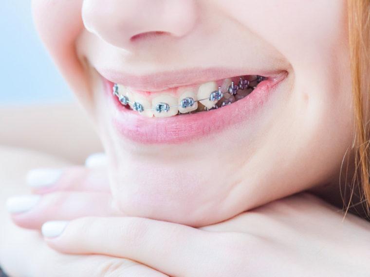 Tarifs de soins en orthodontie
